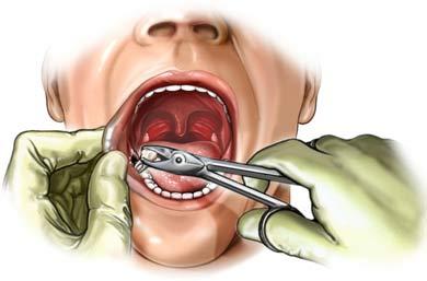 diente.jpg